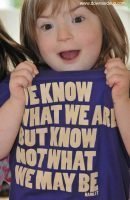 Exposing quotes that reinforce Down's syndrome myths: The Truth